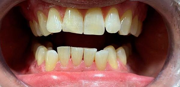 Blanqueamiento dental realizado por expertos profesionales