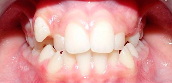 Ortodoncia para corregir alteraciones dentales
