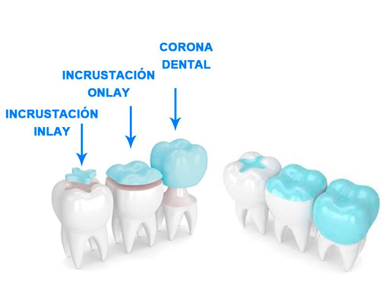 Ejemplo de incrustaciones onlay inlay y coronas dentales